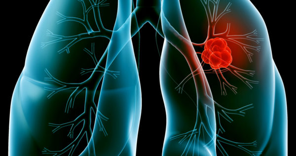 Lung Cancer and Exposure to Hazardous Substances