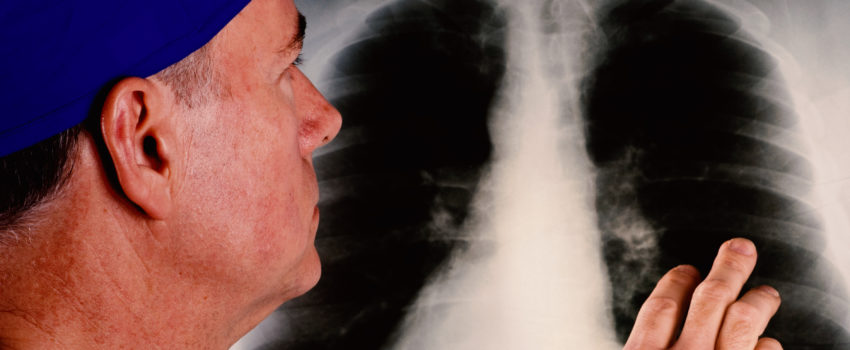 Mesothelioma: Lung Cancer Caused by Inhaling Asbestos